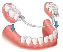 Сургут бесплатное протезирование зубов пенсионерам