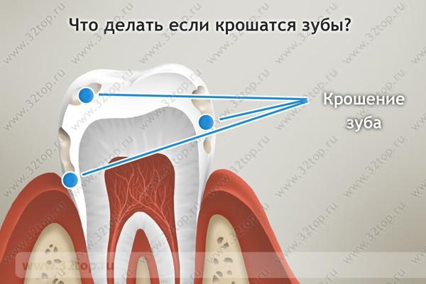 Как вырвать зуб если он раскрошился