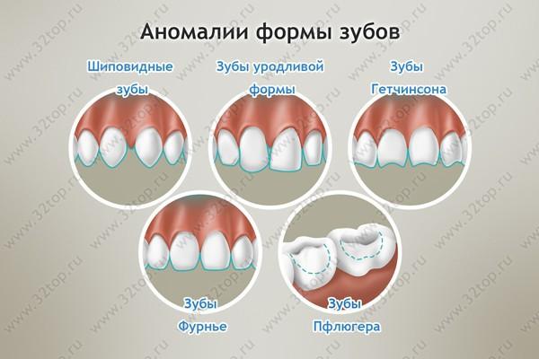 У меня зубы круглой формы