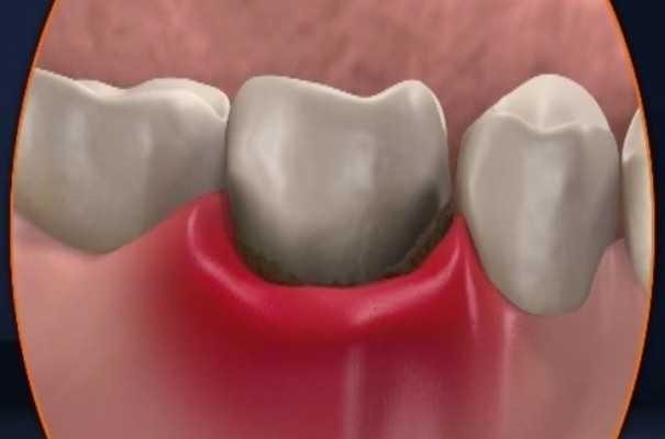 Как лечить воспаление лунки после удаления зуба