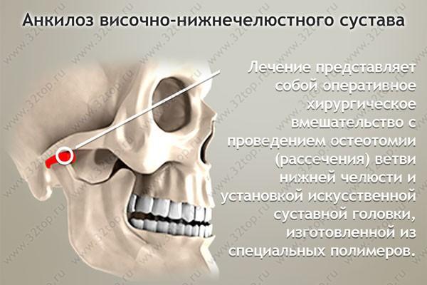 ot-chego-bolit-chelyustnoy-sustav