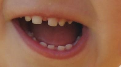как исправить редкие зубы фото