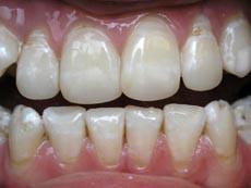 Голубоватая эмаль зуба