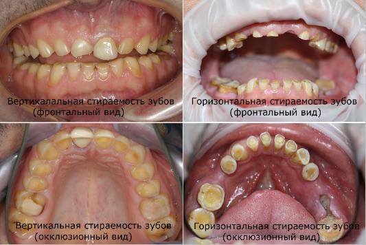 Вертикальная и горизонтальная стираемость зубов