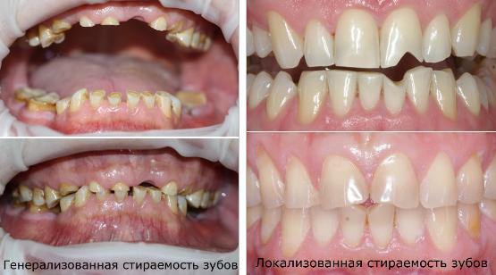 Генерализованная и локализованная стираемость зубов