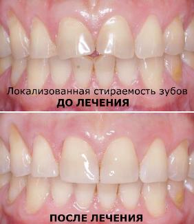 Лечение локализованной стираемости зубов