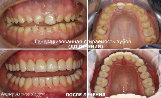 Лечение генерализованной стираемости зубов