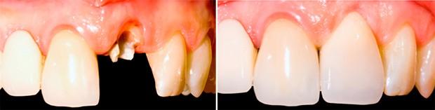 На фотографии показан пример восстановления зуба по методике имплантации с немедленной нагрузкой.