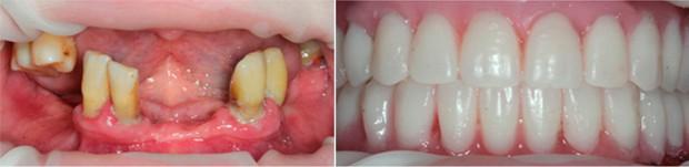На фотографии пример восстановления всех зубов за 3 дня в стоматологии SIMPLADENT при атрофии костной ткани и осложненной форме пародонтита сопровождающейся выпадением зубов и атрофией костной ткани.