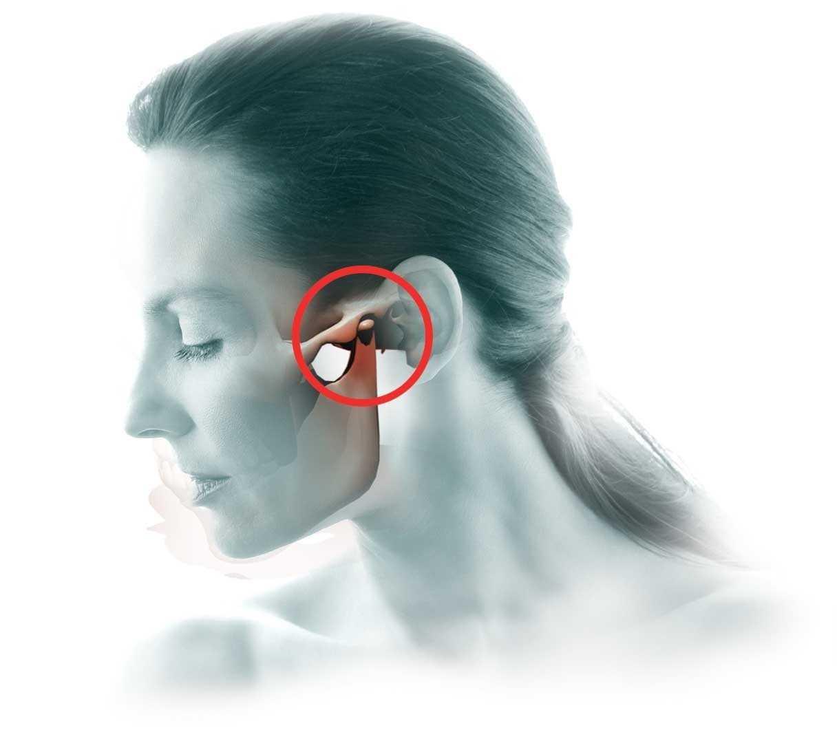 артрит внчс лечение в новосибирске