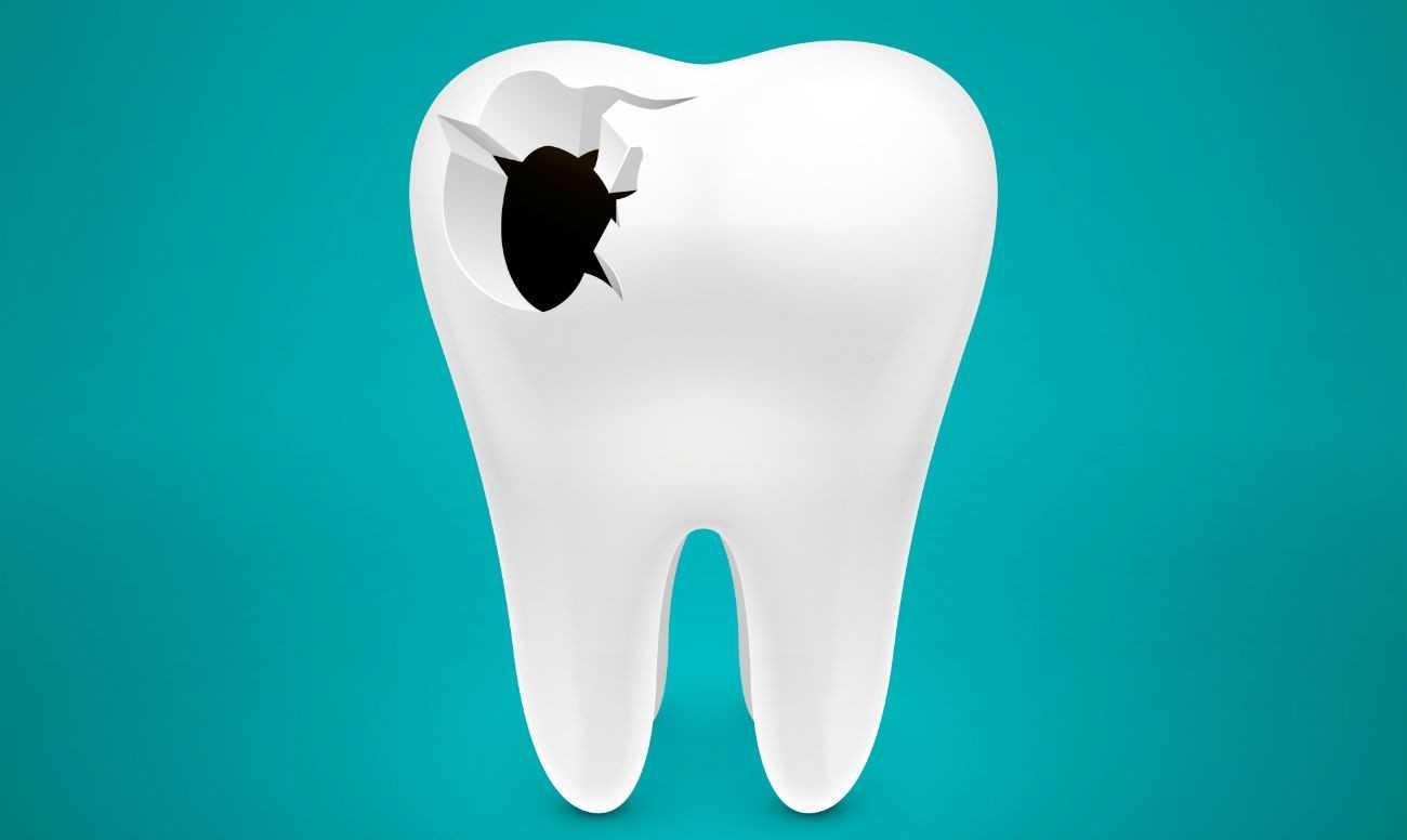 Зуб на картинке