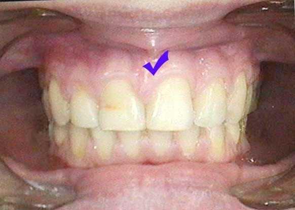 уздечка верхней губы фото