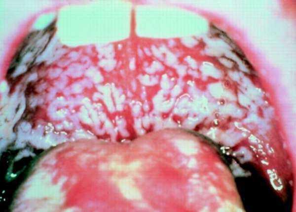инфекция после маникюра фото