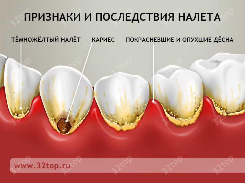 Зубной камень черного цвета