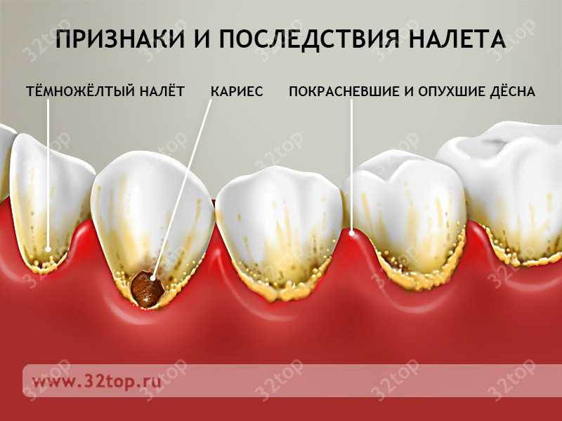 Как удалить чёрный налёт на зубах