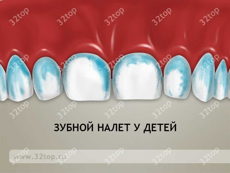 Почему на зубах налёт на языке