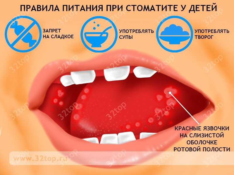 Чем обрабатывать рот при стоматите у детей в домашних условиях 17