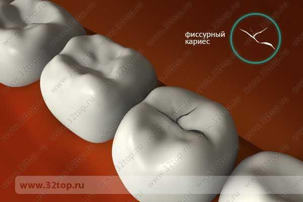 Отбеливание зубов zoom 3 москва цены