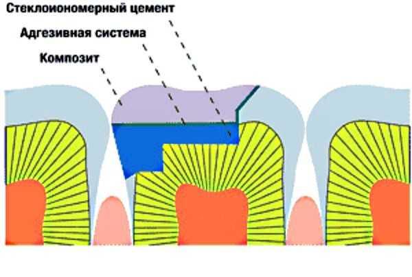Стеклоиономерный цемент
