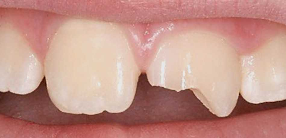 Нет кусочка переднего зуба