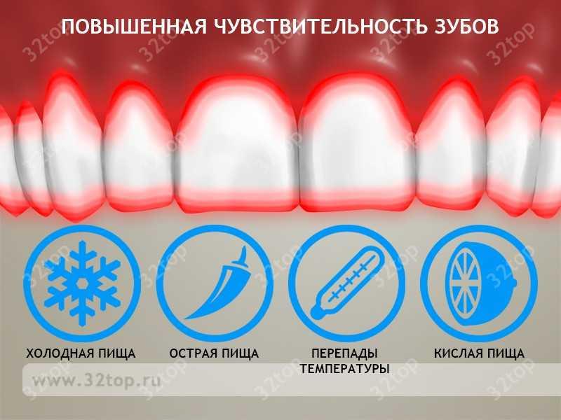 Что такое снятие гиперстезии одного зуба