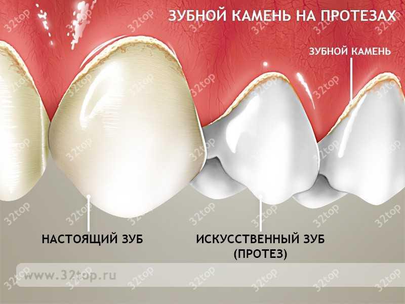 Зубной камень на протезах