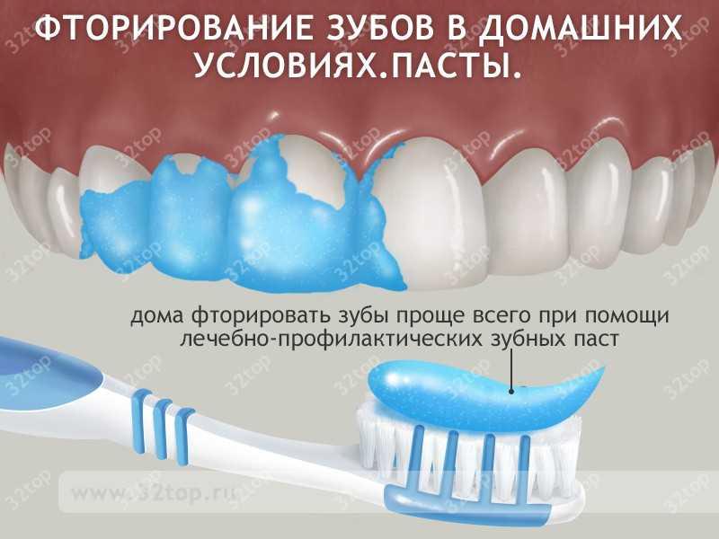 Фторирование зубов в домашних условиях