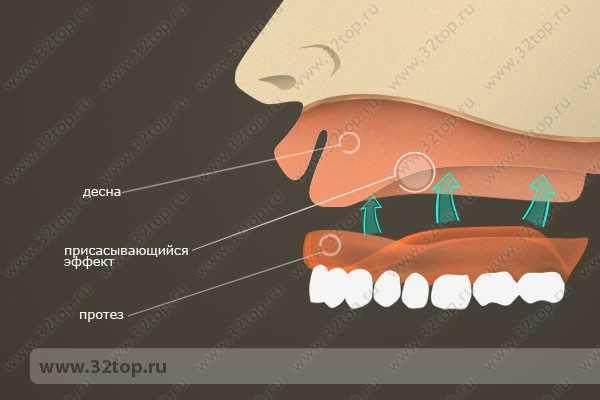 Гибкие нейлоновые зубные протезы
