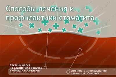 Способы лечения и профилактики стоматита