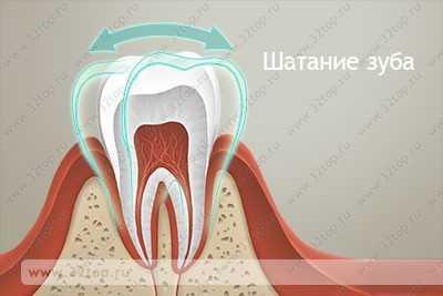 Беременность шатаются зубы