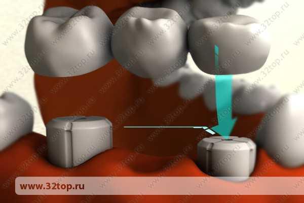 как выглядят зубные виниры