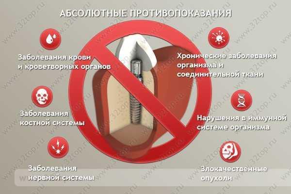 Имплантация зубов беременным противопоказана при