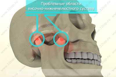 Послеоперационный период после артроскопии плечевого сустава