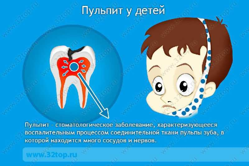 Профилактика лечения пульпита