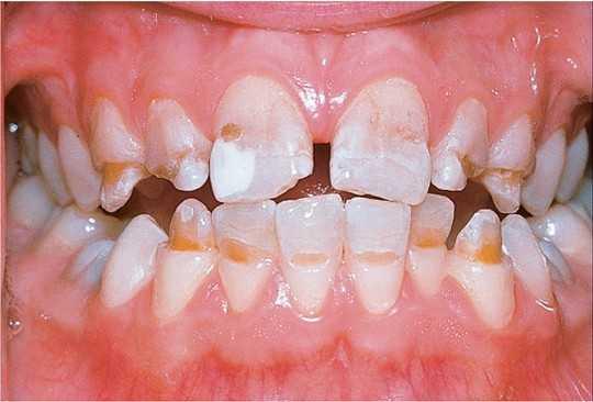 Патология твердых тканей зубов
