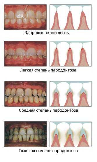 Различные стадии пародонтоза