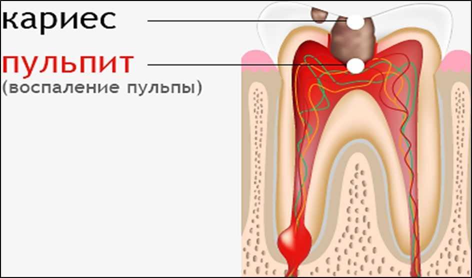 Картинки по запросу Симптомы пульпита