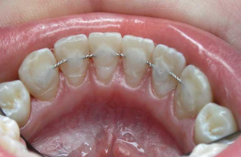 Шинирование. Зубы удерживаются на правильном месте