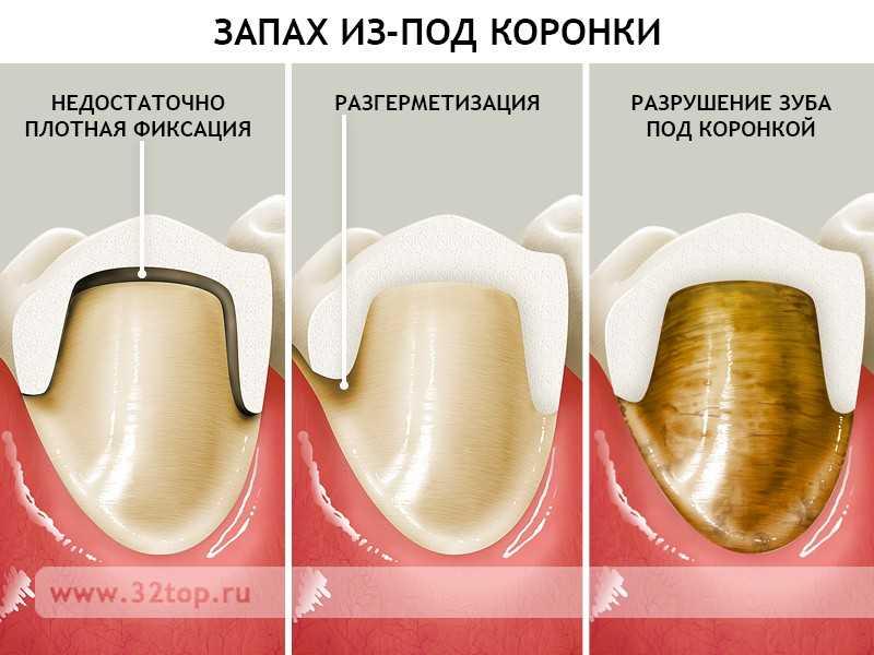 После удаления зуба запах гнили