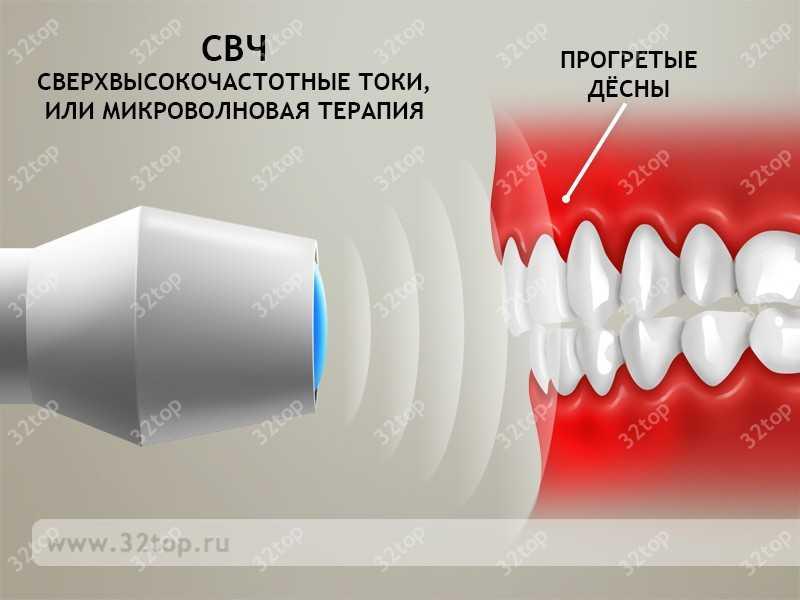 Терапия Микроволновая