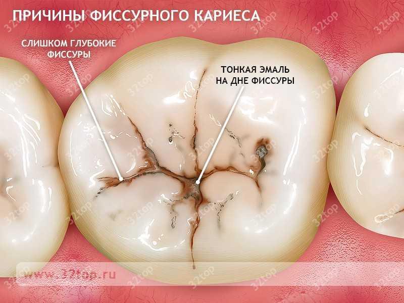 Отбеливание в стоматологии видео
