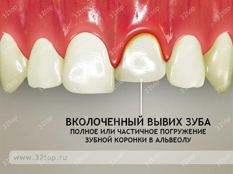 Вывих зуба: причины, симптомы, лечение