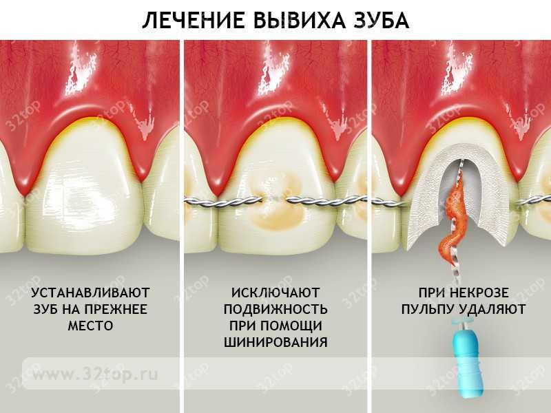 вколоченный вывих зуба у ребенка