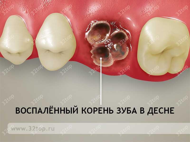Удаление разрушенного зуба мудрости на нижней челюсти