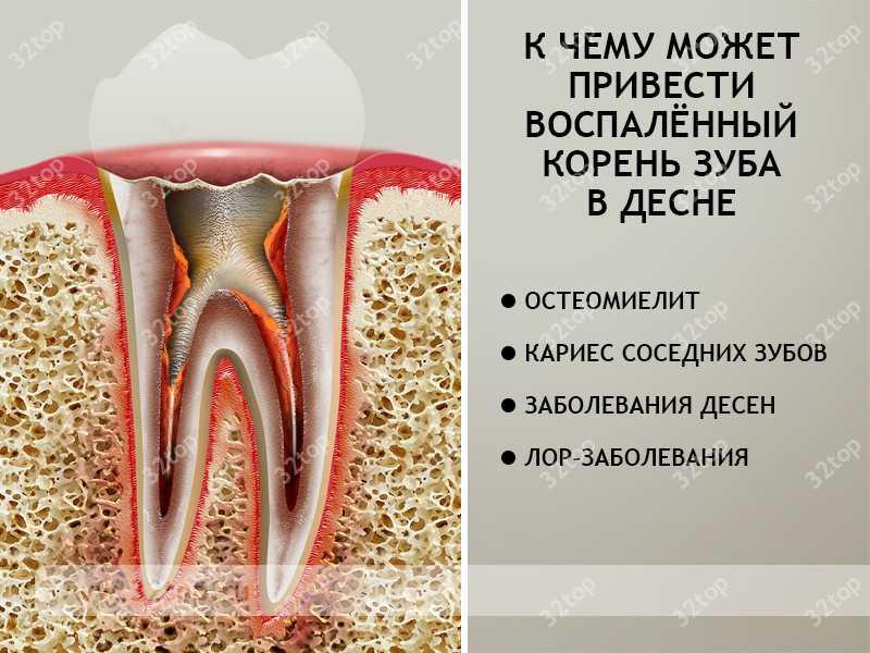 Как удалить корни зуба если зуб разрушен