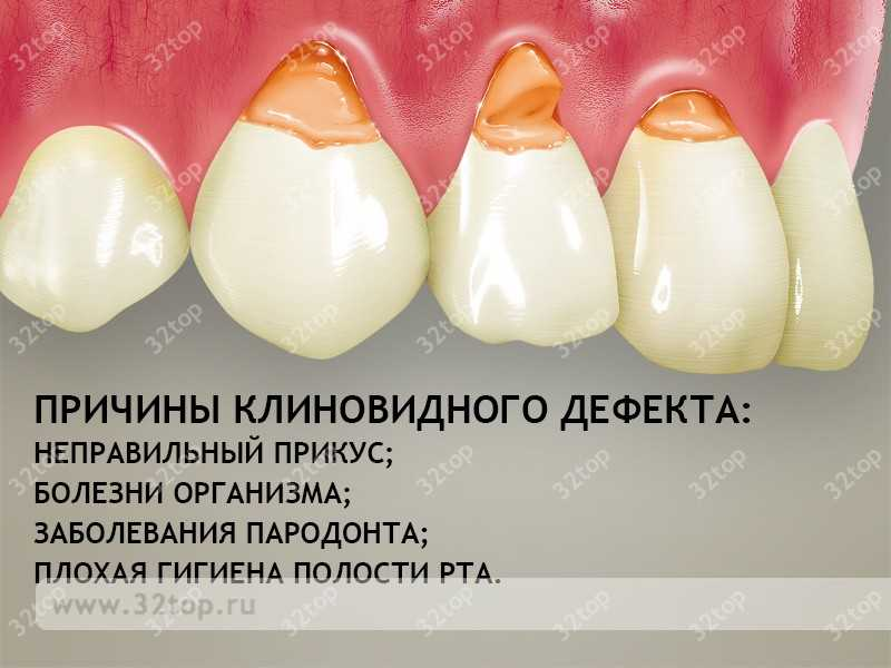 Причины возникновения клиновидного дефекта зубов