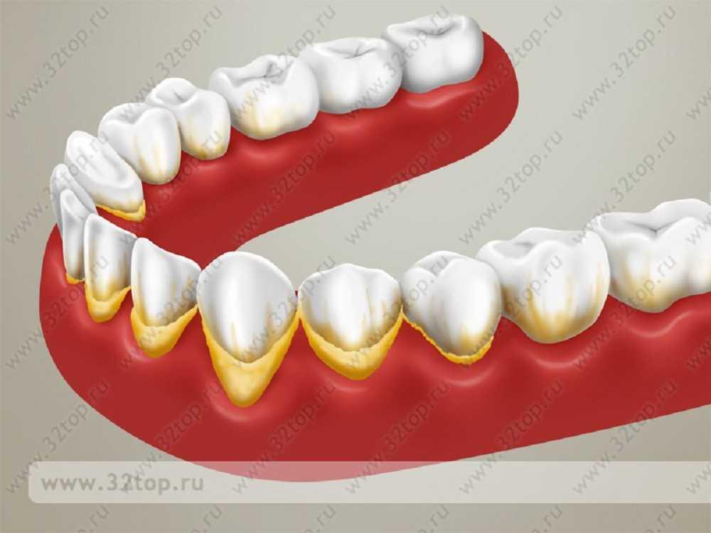 Зубной камень картинки