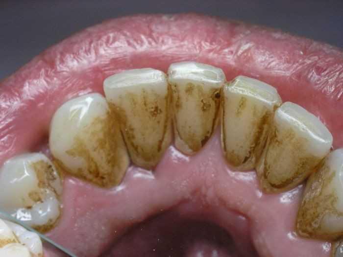 Зубной налёт, его причины и виды Стоимость удаления зубного налёта