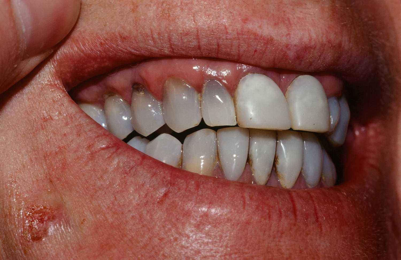 Пигментный зубной налет