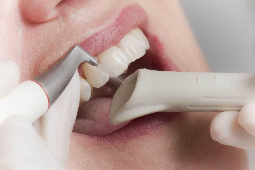 Чистка зубов методом AirFlow